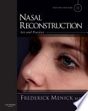 Nasal Reconstruction  Art and Practice