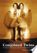 Conjoined Twins : the result is conjoined twins. the...