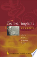 Cochlear Implants   an Update