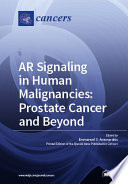 Ar Signaling In Human Malignancies Prostate Cancer And Beyond