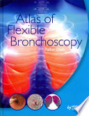 Atlas Of Flexible Bronchoscopy book