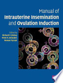 Manual of Intrauterine Insemination and Ovulation Induction Book PDF