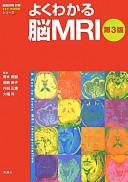 よくわかる脳MRI