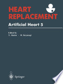 Heart Replacement