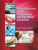 Tooth Extractions, Socket Preservations and Third Molar Extractions