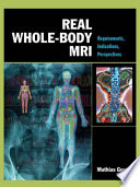 Real Whole Body MRI  Requirements  Indications  Perspectives