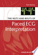 The Nuts and bolts of Paced ECG Interpretation