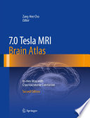 7 0 Tesla MRI Brain Atlas