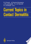 Current Topics in Contact Dermatitis