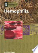 Hemophilia
