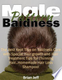 Male Pattern Baldness  The Best Kept Tips On Baldness Cure With Special Hair Growth and Hair Treatment Tips for Thinning Hair    Homemade Hair Loss Shampoo