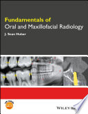 Fundamentals of Oral and Maxillofacial Radiology Overview Of The Principles Of Dental Radiology