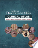 Andrews  Diseases of the Skin Clinical Atlas E Book
