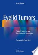 Eyelid Tumors