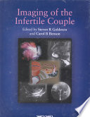 Imaging of the Infertile Couple