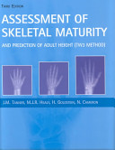 Assessment of Skeletal Maturity and Prediction of Adult Height  TW3 Method