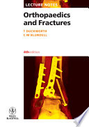 Lecture Notes Orthopaedics And Fractures