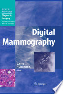 Digital Mammography