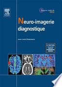 Neuro-imagerie diagnostique 2012 Le Scanner Et L Irm Ont