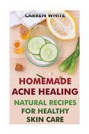 Homemade Acne Healing