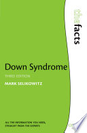 Down Syndrome Degrees Of Learning Disability As Well As