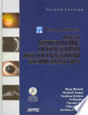Atlas of Ophthalmic Ultrasound and Ultrasound Biomicroscopy