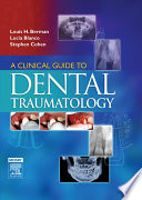 A Clinical Guide to Dental Traumatology