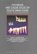 Textbook And Colour Atlas Of Tooth Impactions
