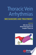 Thoracic Vein Arrhythmias