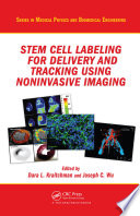 Stem Cell Labeling for Delivery and Tracking Using Noninvasive Imaging