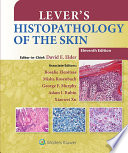 Lever s Histopathology of the Skin