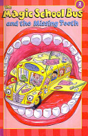 The Magic School Bus and The Missing Tooth