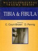 TIBIA & FIBIA