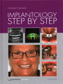Implantology Step by Step