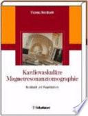 Kardiovaskul  re Magnetresonanztomographie