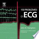 illustration 150 problèmes d'ECG