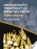 Orthodontic Treatment of Impacted Teeth