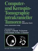 Computer  und Kernspin Tomographie intrakranieller Tumoren aus klinischer Sicht