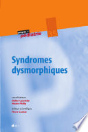 illustration Syndromes dysmorphiques