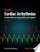 Bennett s Cardiac Arrhythmias