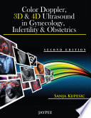 Color Doppler 3d And 4d Ultrasound In Gynecology Infertility And Obstetrics book