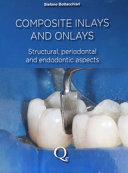 Composite Inlays and Onlays