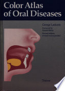 Color Atlas Of Oral Diseases