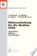 Bildverarbeitung für die Medizin 1998