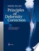Principles Of Deformity Correction book