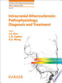 Intracranial Atherosclerosis Pathophysiology Diagnosis And Treatment