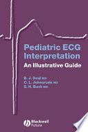Pediatric Ecg Interpretation