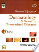Illustrated Synopsis Of Dermatology   Sexually Transmitted Diseases  3Nd Edition