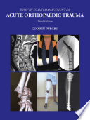 Principles And Management Of Acute Orthopaedic Trauma book