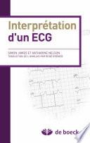 Interprétation d'un ECG